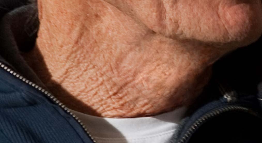How to fix crepey skin on neck